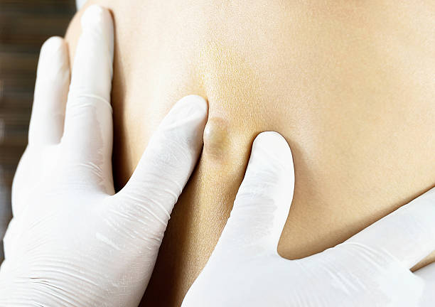 doctor diagnosis of the sebaceous on woman's back - cyst stock pictures, royalty-free photos & images