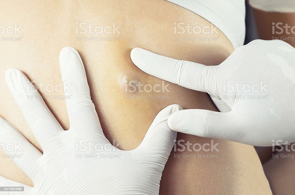 Doctor Diagnosis of the Sebaceous on Woman's Back stock photo