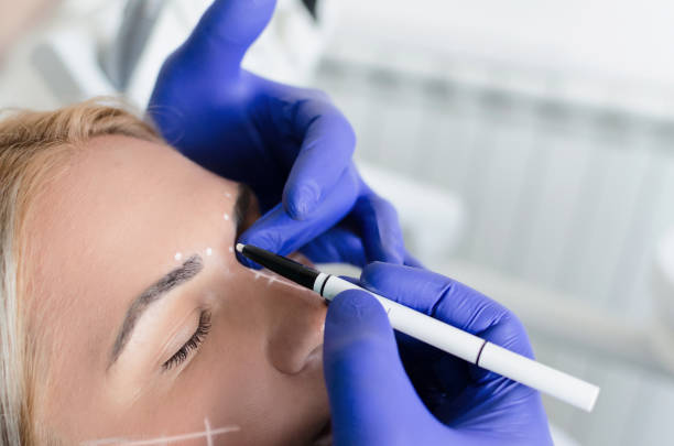 Doctor doing preparations for botox procedure on woman stock photo