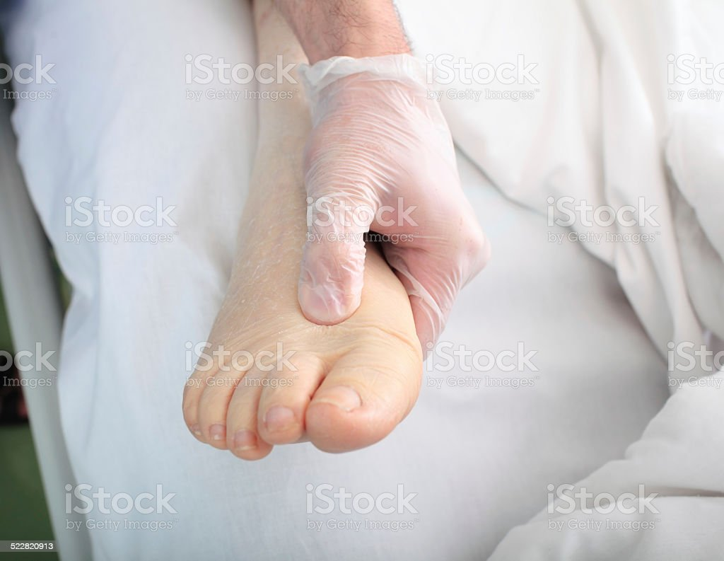 doctor examines foot of heavy patient with edema stock photo