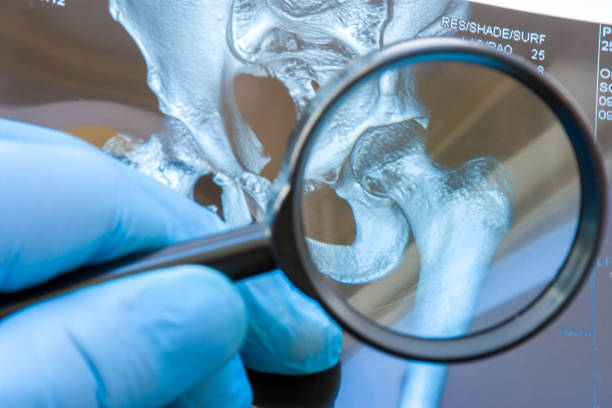Doctor examines MRI snapshot of hip joint with magnifying glass. Careful diagnosis rare and occurs widely hip joint diseases such as chronic pain, arthritis, osteoarthritis, rheumatoid, dysplasia stock photo