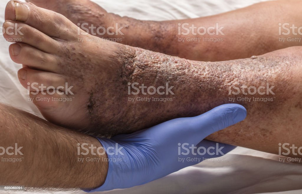 doctor examines the leg old female patient for varicose veins stock photo