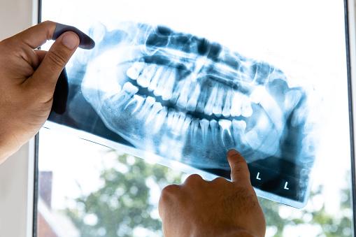 Arzt Untersucht Röntgenbild Des Menschlichen Kiefers Stockfoto und mehr Bilder von Anatomie