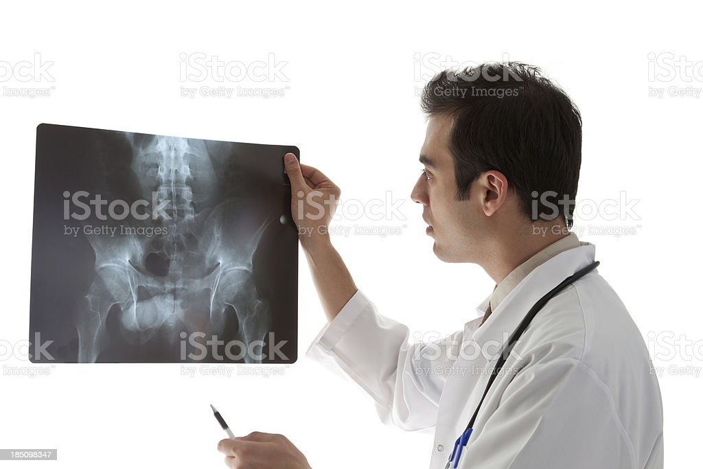 Doctor examining a Sacrum X-ray stock photo