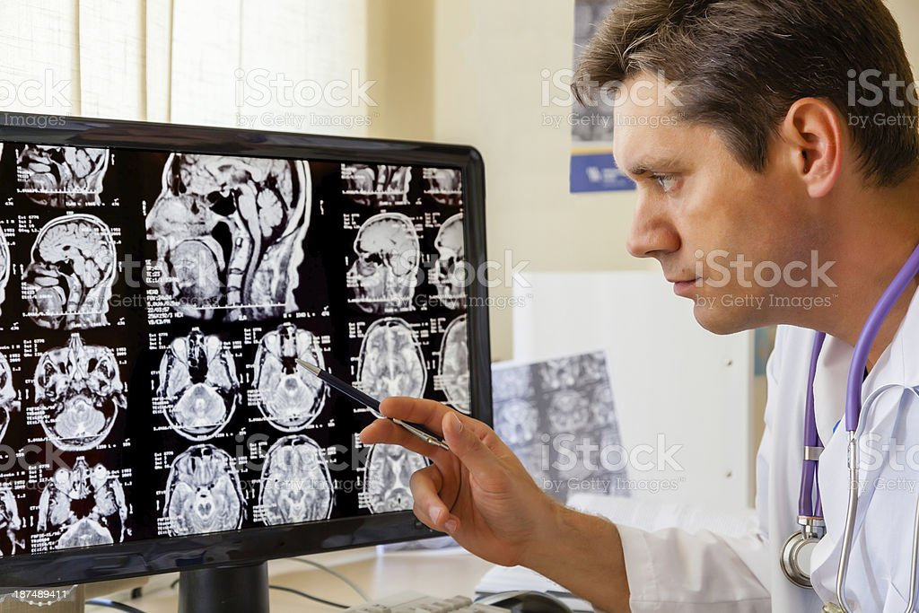 Doctor examining an MRI scan of the Brain stock photo