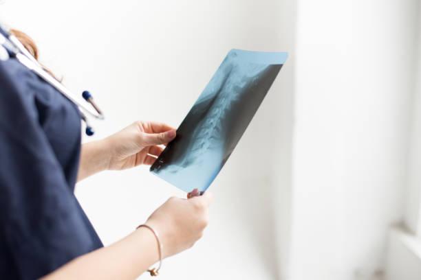 백색 배경에 병원에서 환자의 가슴 엑스레이 필름을 검사 하는 의사, 복사 공간 - x 레이 뉴스 사진 이미지