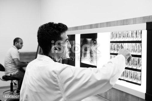 istock Doctor examining MRI scan 185306207