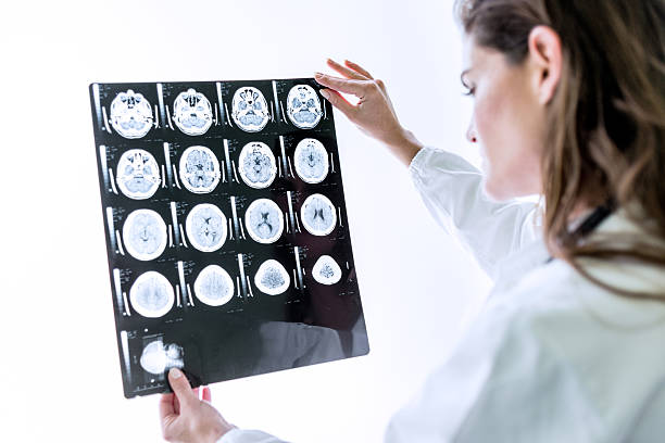 Doctor examining MRI scan stock photo