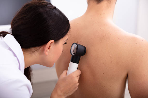 Doctor Examining Pigmented Skin On Man's Back Female Doctor Examining Pigmented Skin On Man's Back With Dermatoscope human skin stock pictures, royalty-free photos & images
