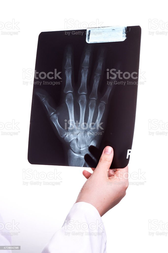Doctor exams a X Ray picture stock photo