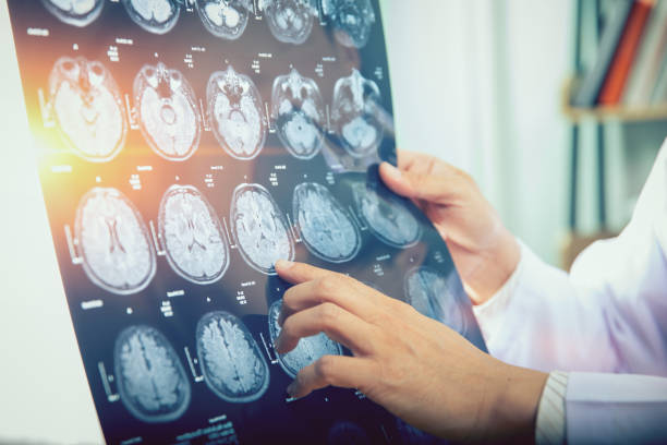 doctor give advice to patient about MRI (Xray) brain Scans doctor give advice to patient about MRI (Xray) brain Scans medical x ray stock pictures, royalty-free photos & images