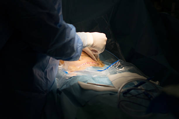 Doctor giving a cesarean section cut stock photo