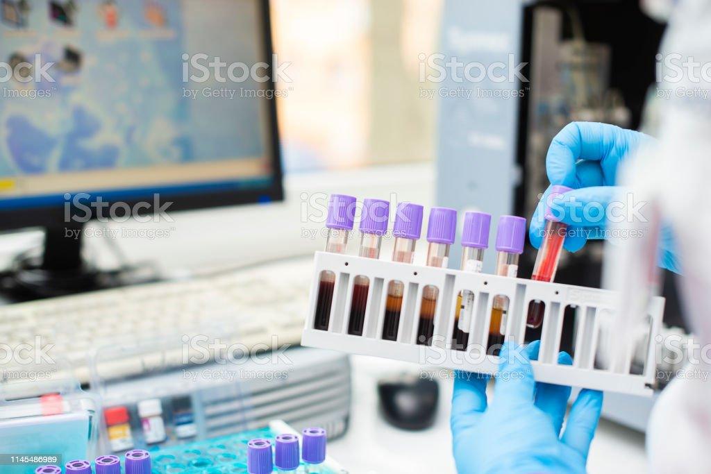 Stock photo laboratory tech with test tube of blood