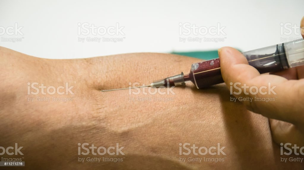 Doctor  hands medical gloves using needle syringe drawing blood sample from patient arm in hospital. stock photo