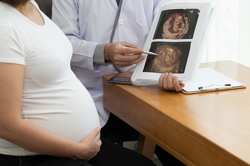 istock Doctor holding 4D ultrasound image result and talking to the pregnant woman. During pregnancy concept 1173758666