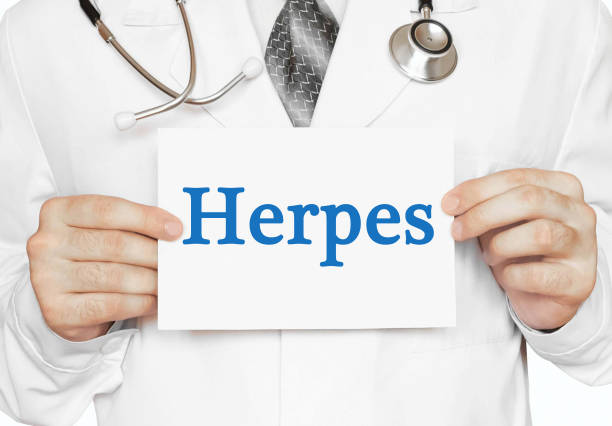 Doctor holding a card with Herpes, Medical concept Doctor holding a card with Herpes, Medical concept herpes stock pictures, royalty-free photos & images
