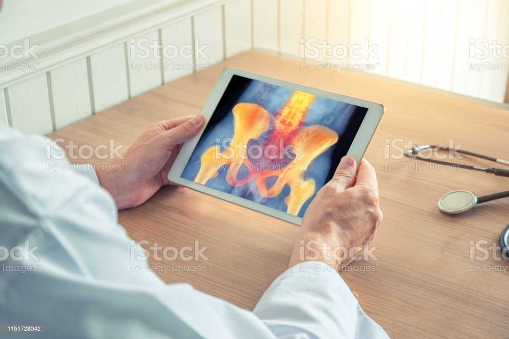 Doctor holding a digital tablet with x-ray of hips and spine
