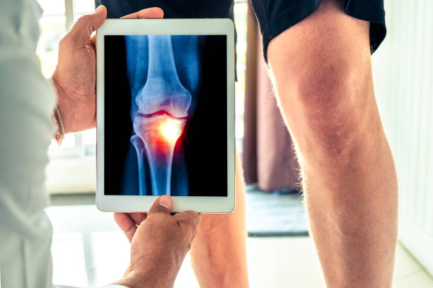 doctor holding a digital tablet with x-ray of knee of the patient - ginocchio foto e immagini stock