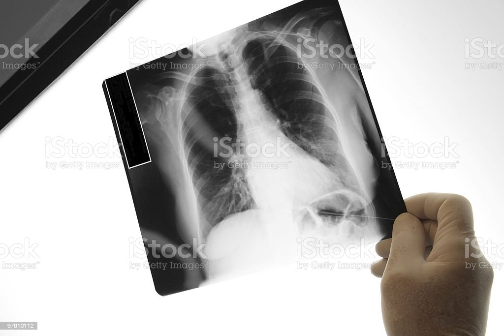 Doctor holding an x-ray image, royalty-free stock photo