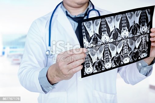 836113342istockphoto Doctor holding and checking chest x-ray film or roentgen image in ward hospital 867767176