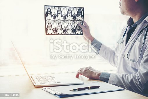836113342 istock photo Doctor holding and checking chest x-ray film or roentgen image in ward hospital 910730894
