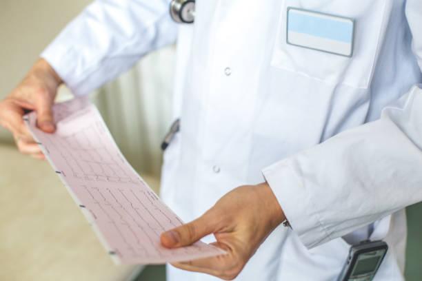 Doutor, segurando os resultados do eletrocardiograma - foto de acervo