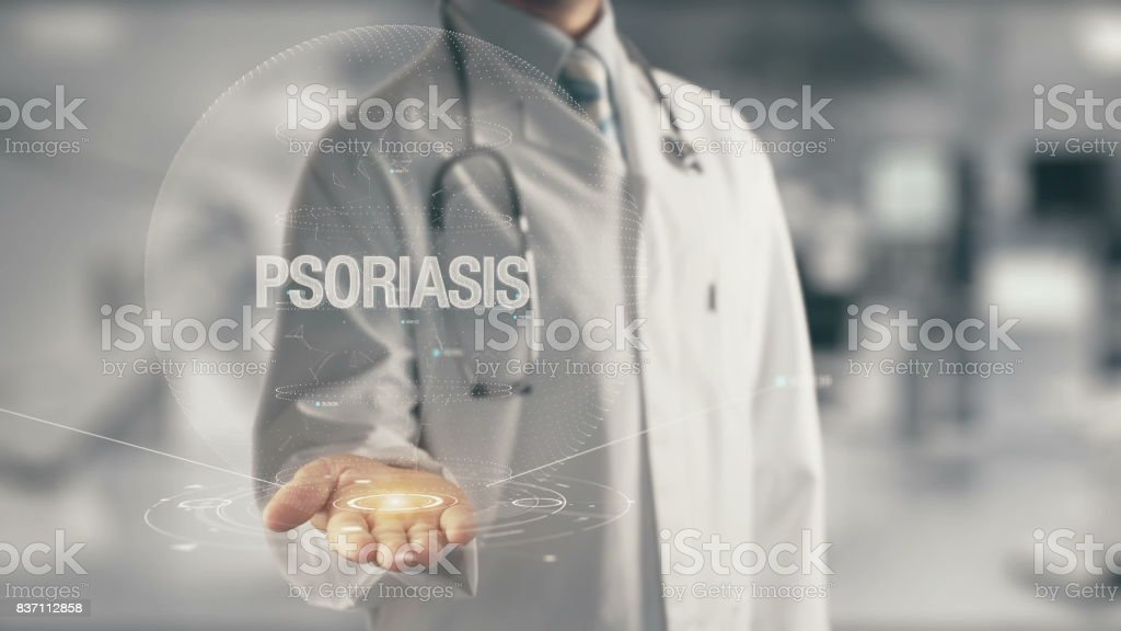 Doctor holding in hand Psoriasis stock photo