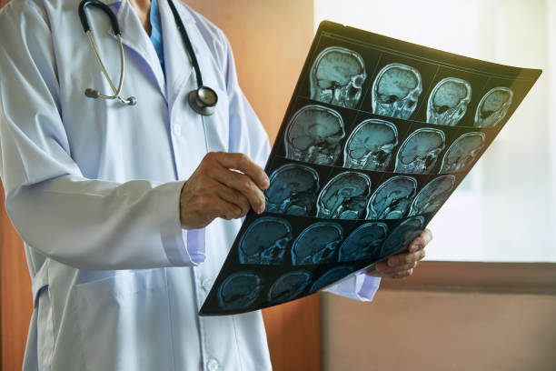 Doctor holding MRI brain in medical office Doctor with stethoscope holding human brain MRI imaging in medical office neuroscience patient stock pictures, royalty-free photos & images