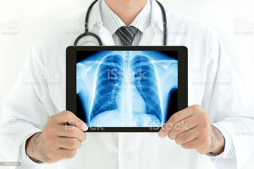 Arzt Hält Tablet Pc Mit Normalen Männliche Brust Röntgenbild Stock ...