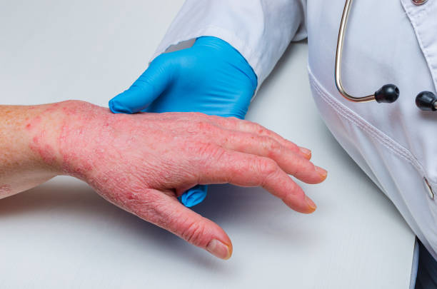A doctor in gloves examines the skin of the hand of a sick patient. Chronic skin diseases - psoriasis, eczema, dermatitis. doctor in gloves examines the skin of the hand of a sick patient. Chronic skin diseases - psoriasis, eczema, dermatitis. skin condition stock pictures, royalty-free photos & images
