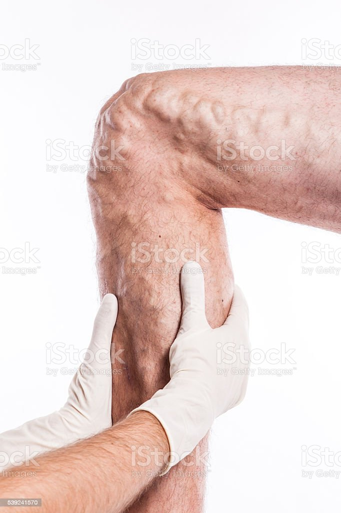 Doctor in medical gloves examines a person with varicose veins stock photo