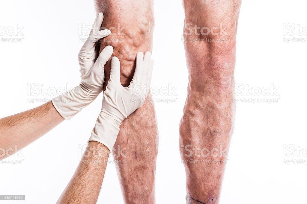 En guantes médicos médico examina una persona con venas varicosas foto de stock libre de derechos