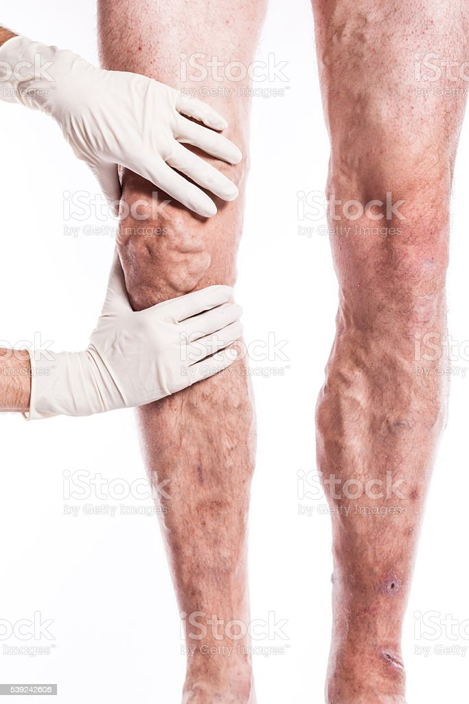 Doctor in medical gloves examines a person with varicose veins royalty-free stock photo