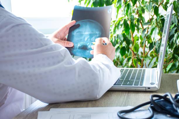 doctor in kantoor in de buurt van computer beschouwt en onderzoekt röntgenstraal van menselijke schedel. foto van het proces van diagnose van ziekte of aandoening van botschedel systeem, pathologie van oog of oor, neus, craniale sinussen - bijholte stockfoto's en -beelden