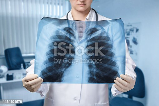 A young doctor is standing and looking at the lungs image at the blurred hospital room background. The concept of medical service, diagnosis and treatment.