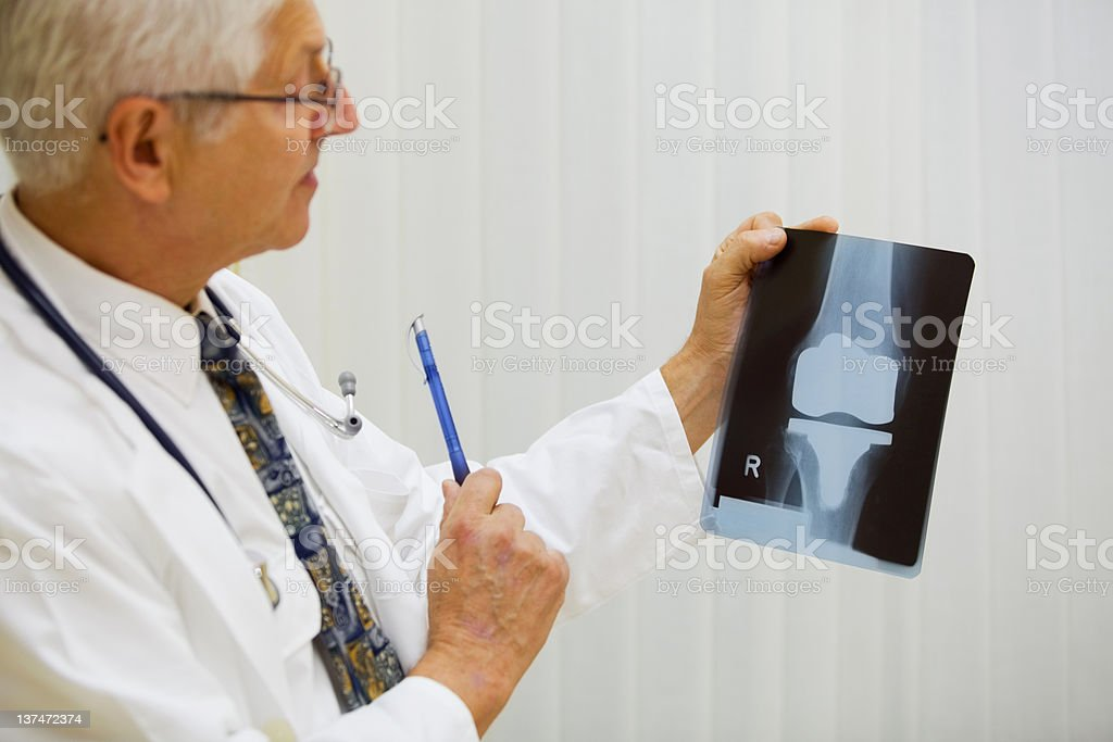 Doctor is examining X-ray image of artificial knee stock photo