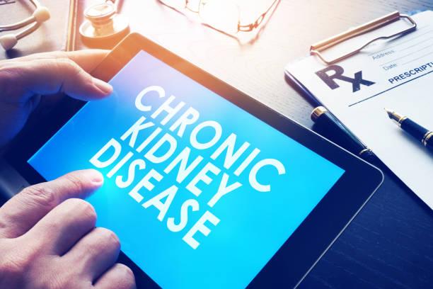läkare läser om kronisk njursjukdom (ckd). - kronisk sjukdom bildbanksfoton och bilder