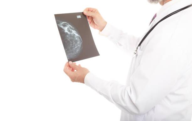 Arzt, der sich eine Mammographie ansieht – Foto