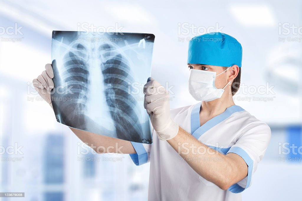 A doctor looking at a x-ray film of the lungs stock photo