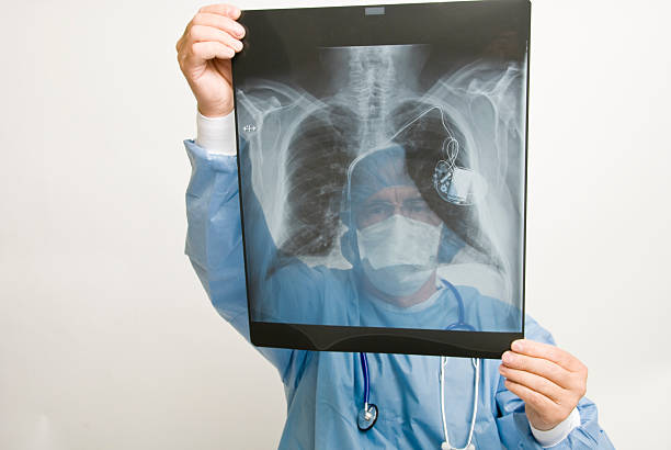 Doctor Looking at X-Ray Doctor looking at x-ray image of human lungs. pacemaker stock pictures, royalty-free photos & images