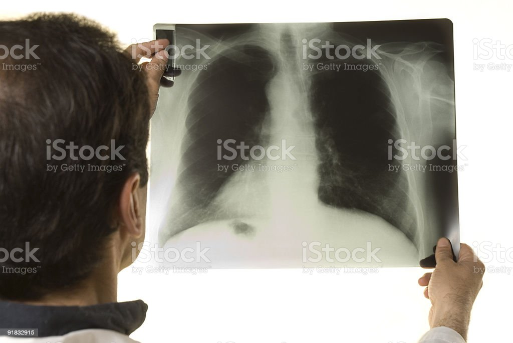 Doctor looking at X-ray stock photo