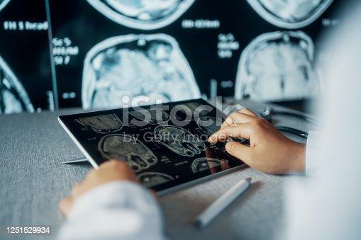 Doctor Looking CT examination image at Computer Monitor
