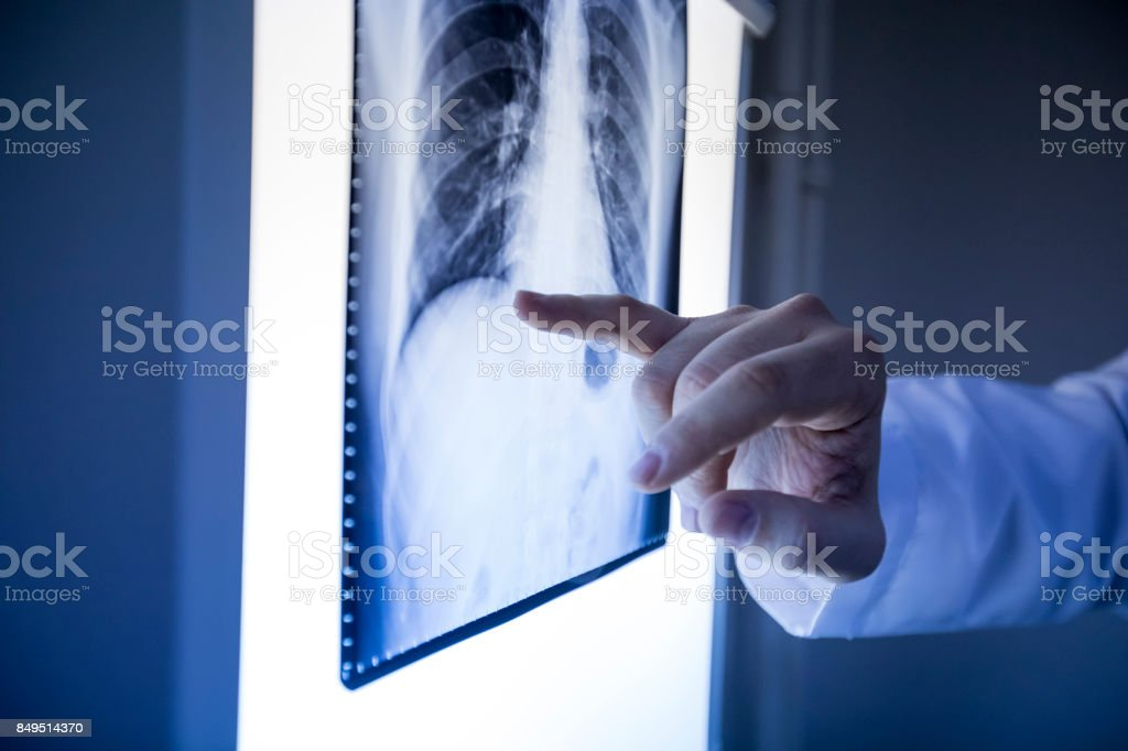 Doctor Looking X Ray stock photo