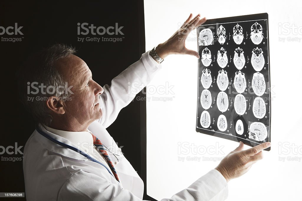 Doctor looks at brain scan images on lightbox stock photo