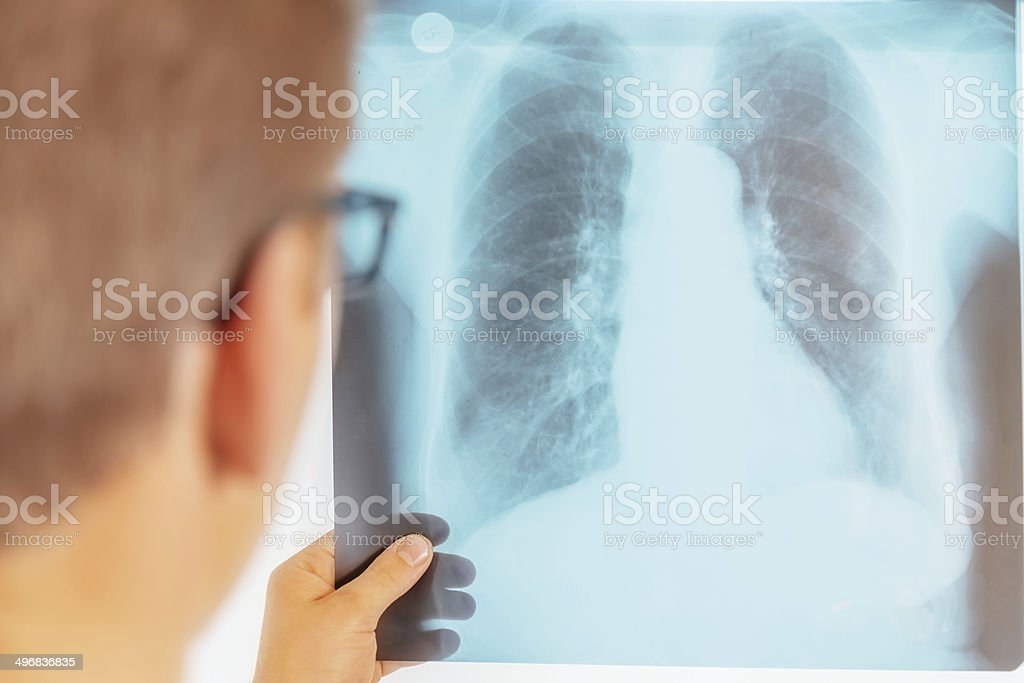 Doctor looks at x-ray image of lungs stock photo