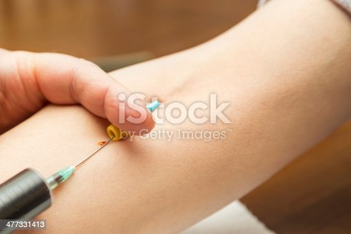 istock Doctor or nurse drawing blood from a vein 477331413