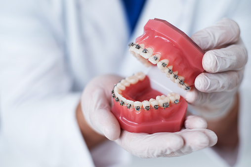 the doctor shows how the system of braces on teeth is arranged