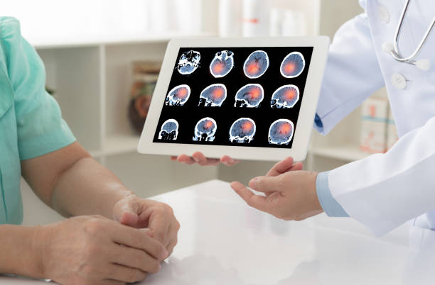 doctor patient brain scan brain cancer or stoke. doctor explaining results check up of brain x-ray scan on digital tablet screen to patient. neurodegenerative disease stock pictures, royalty-free photos & images