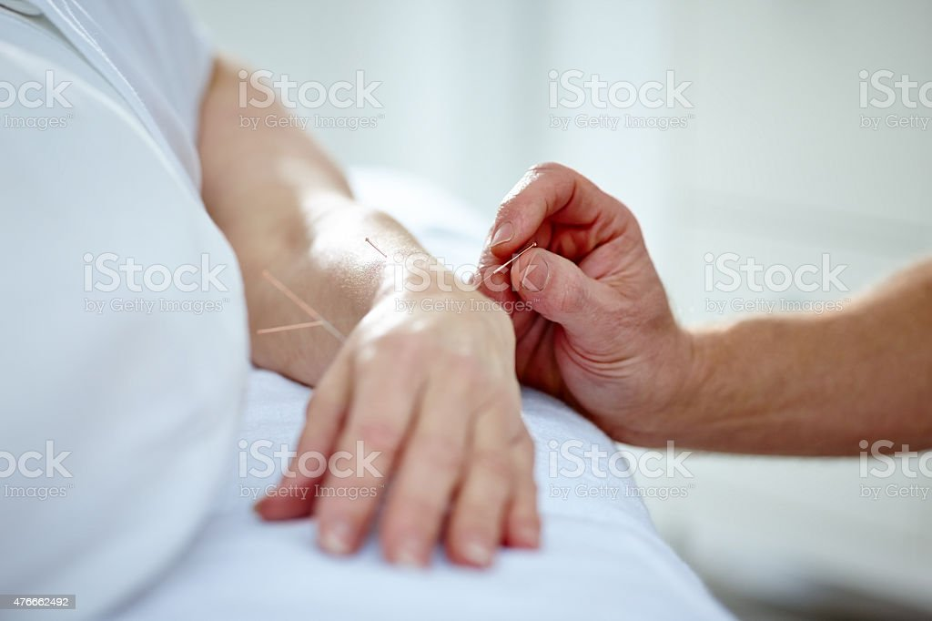 Doctor performing acupuncture on a patients hand stock photo