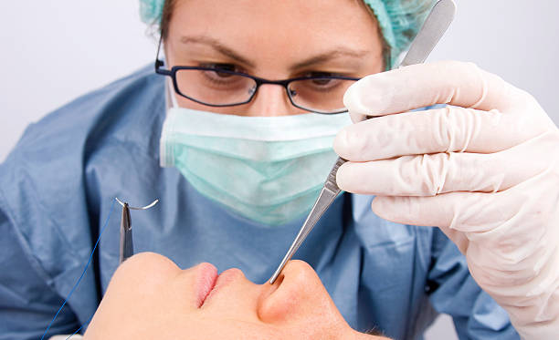 Doctor performing plastic surgery Doctor stitching patient's nose during plastic surgery operation human nose stock pictures, royalty-free photos & images